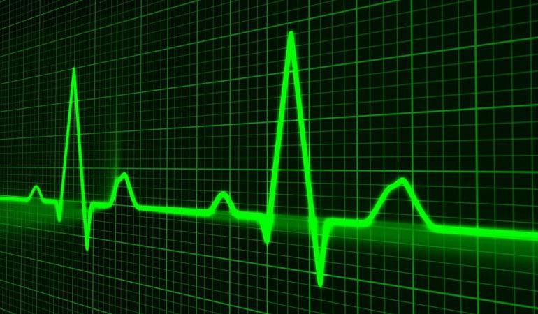 Cos'è la telemetria cardiaca